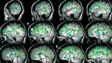 Женский мозг во время оргазма