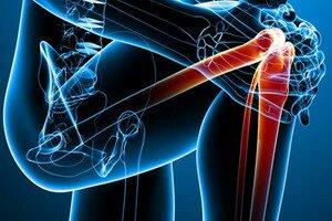 Лечение суставов в Израиле. Фотографии