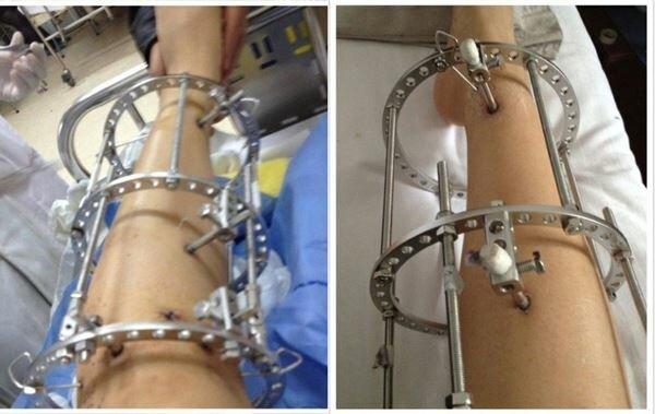 Японская девушка сделала операцию, чтобы удлинить ноги Фотографии