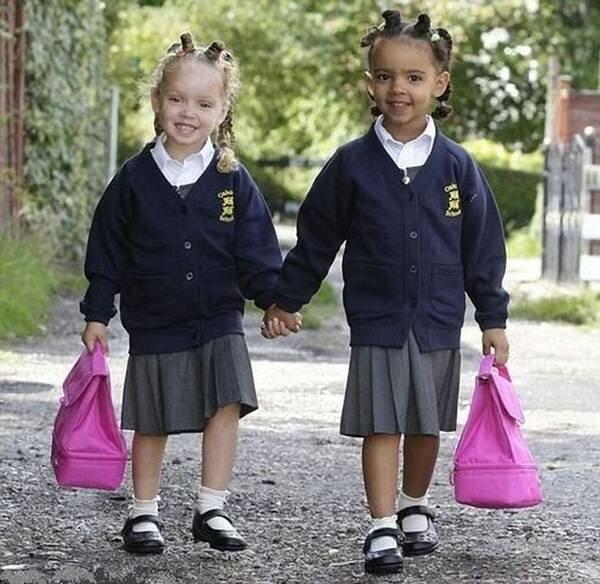 Черно белые близнецы. Фотографии