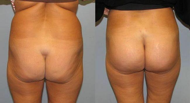 buttocks (7) (650x353, 22Kb)