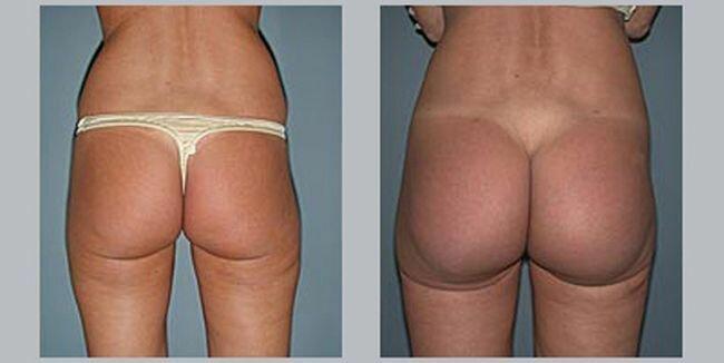 buttocks (9) (650x326, 22Kb)