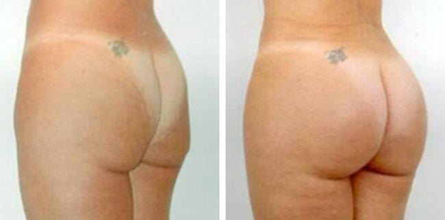 buttocks (11) (650x321, 16Kb)