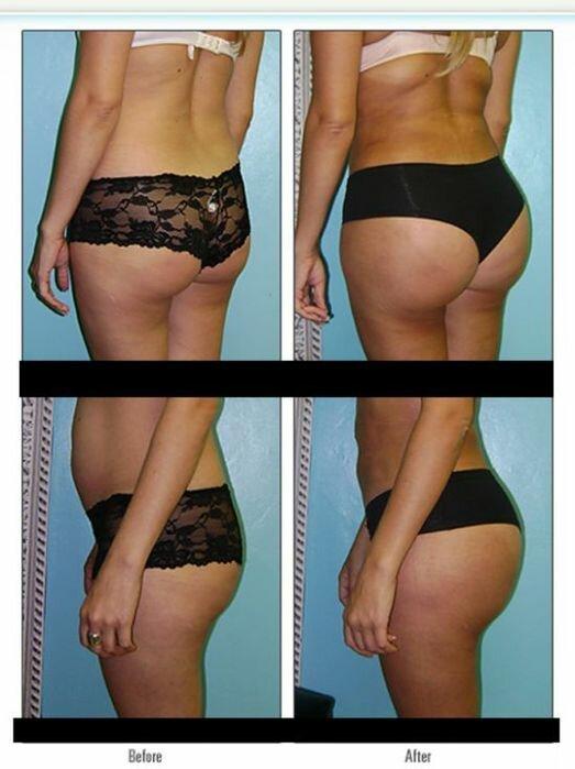 buttocks (13) (523x700, 48Kb)