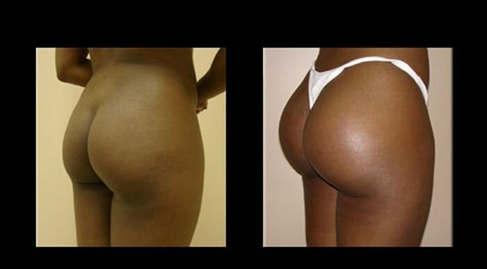 buttocks (15) (700x387, 19Kb)