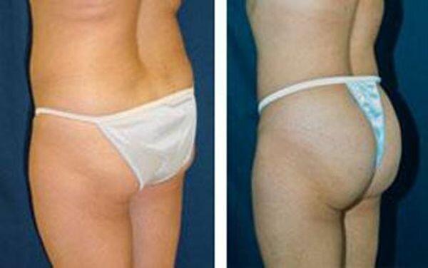 buttocks (3) (600x376, 21Kb)