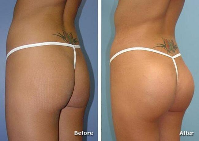 buttocks (8) (650x461, 28Kb)