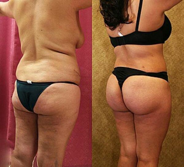 buttocks (16) (600x542, 43Kb)