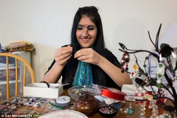 Новый нос афганской девушки Аиши с обложки Time. Фотографии